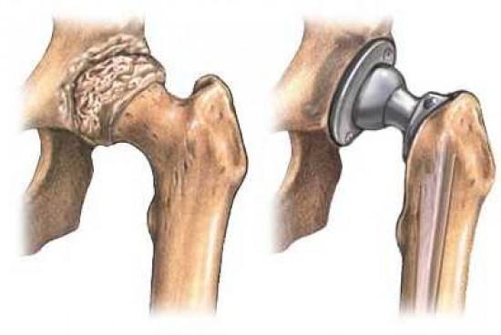 csípő endoprotezis