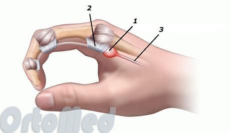a lábujjízület diszlokációja csípő dysplasia kórtörténet