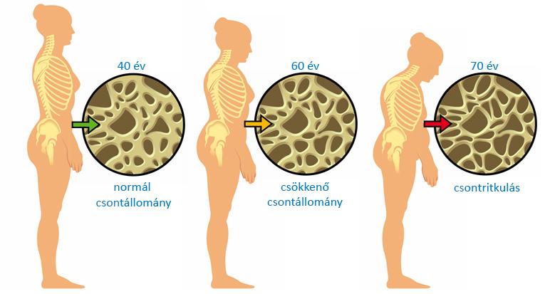 csontritkulás ágyéki kenőcs kezelése