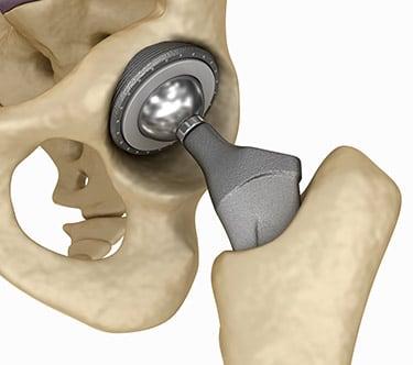 Csípőprotézis műtét - leírása, okai és kezelése