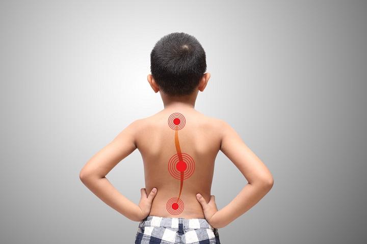 csípő skoliozis 3 fokos kezelés