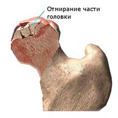 csípőízület artrózisa és coxarthrosisa