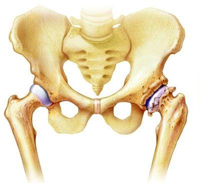 csípőízületi instabilitás kezelése)