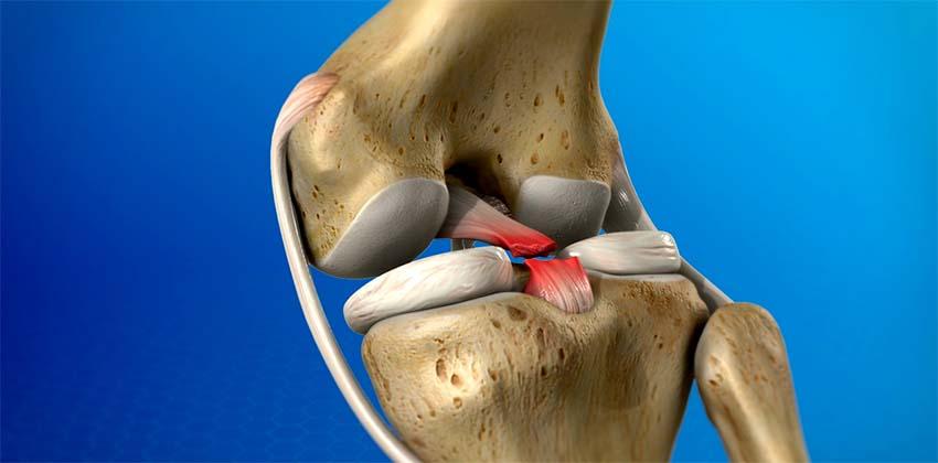 a térd külső oldalsó ágának károsodása