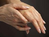 hogyan lehet kezelni a térdgyulladást sérülés során a könyök ízületéből kifolyik a folyadék
