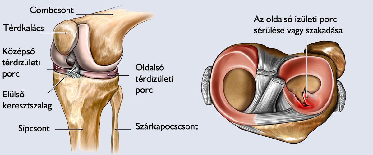a térdízület belső oldalsó ínszalagjának törése