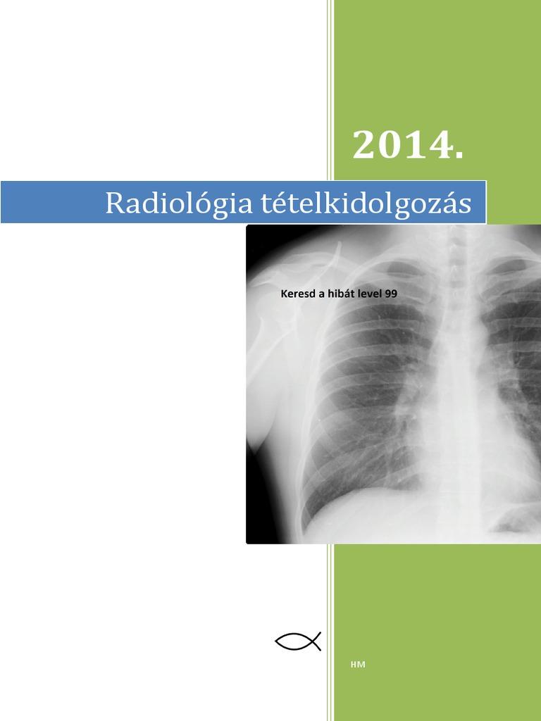 a vállízület sejtcsonti régiójának osteoma diagnosztizálása)