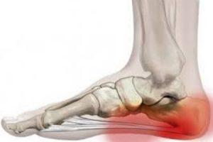 fáj a térdízület ízülete ízületi boka fájdalom, mit kell tenni
