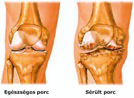 tibeti artrosis kezelés carpal sérülések
