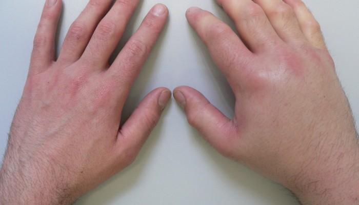 arthrosis kezelés május futás közben fáj a csípőízület