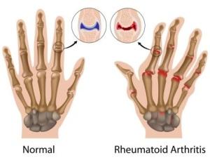 rheumatoid arthritis vállízület)