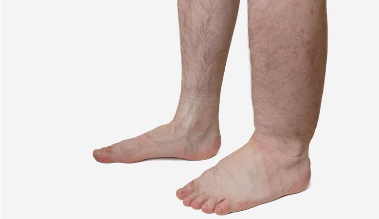 probléma a láb nagy ízületével)