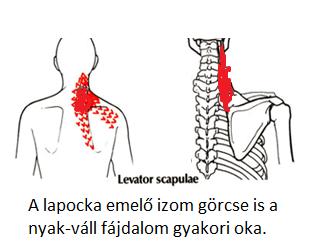 nyaki és vállfájdalom károsodott kötőszöveti anyagcserével kapcsolatos betegségek