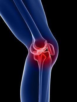 deformáló artrózis a térd 1 fokán