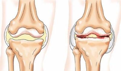 deformáló csípőízület osteoarthrosis 2 fokos kezelése)