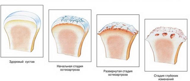 deformáló osteoarthrosis a kis ízületek kezelésében