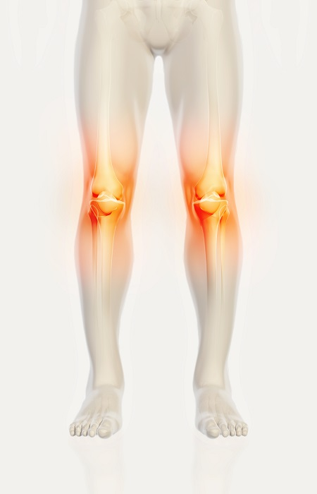 ízületi fájdalom elliptikus edző artrózisos kezelés bioptronlámpával