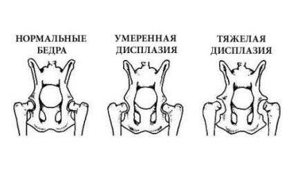 hogyan lehet enyhíteni a duzzanat a bokaízület artrózisával