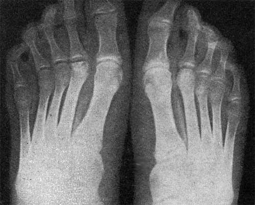 ozokerit, csípőízület artrózisával)