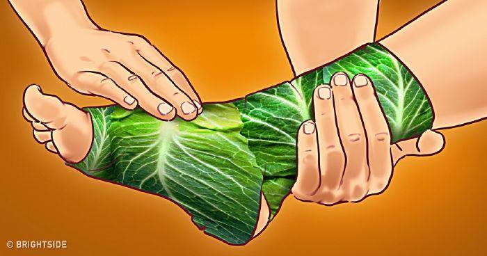 Porckopás, ízületi gyulladás, izomfájdalom kezelése gyógynövényekkel - EgészségKalauz