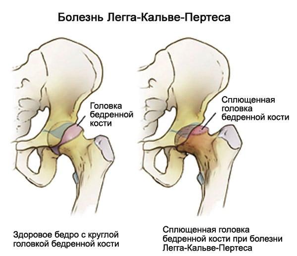 Injekciók a csípőízület coxartrózisával