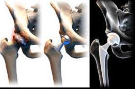 a csípőízület coxarthrosis tünetei és kezelése