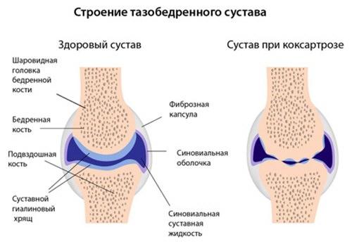 csípőízület 3. fokozatú fájdalomcsillapítók coxarthrosisa