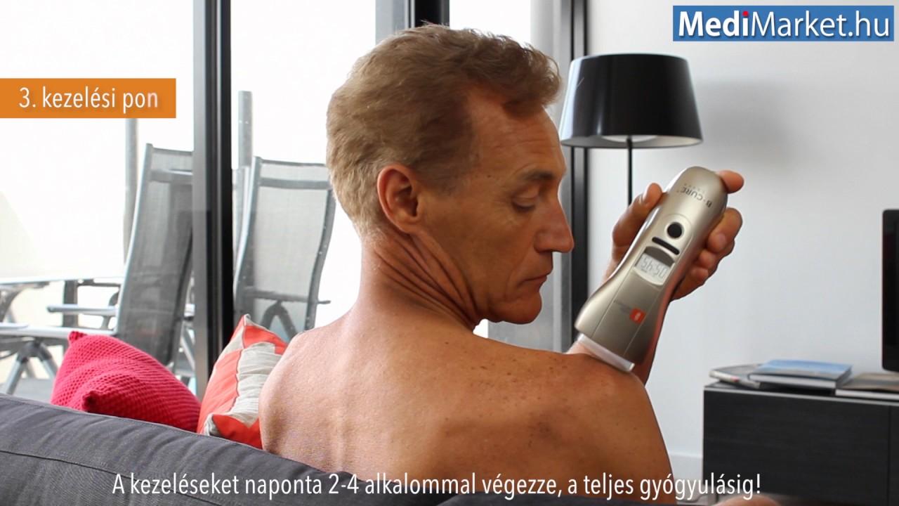 a csípő lézerkezelés lézeres artrózisa kondroitin krémbalzsam glükózamin 75ml