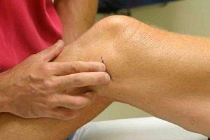 formázás térd artrózissal