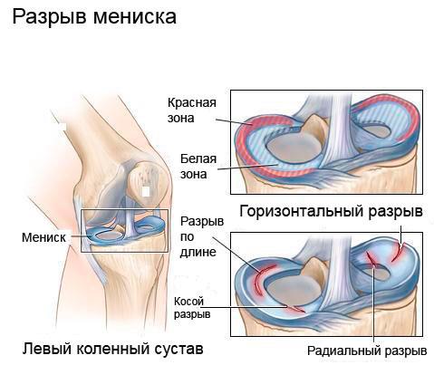 a bal térdízület meniszciájának károsodása