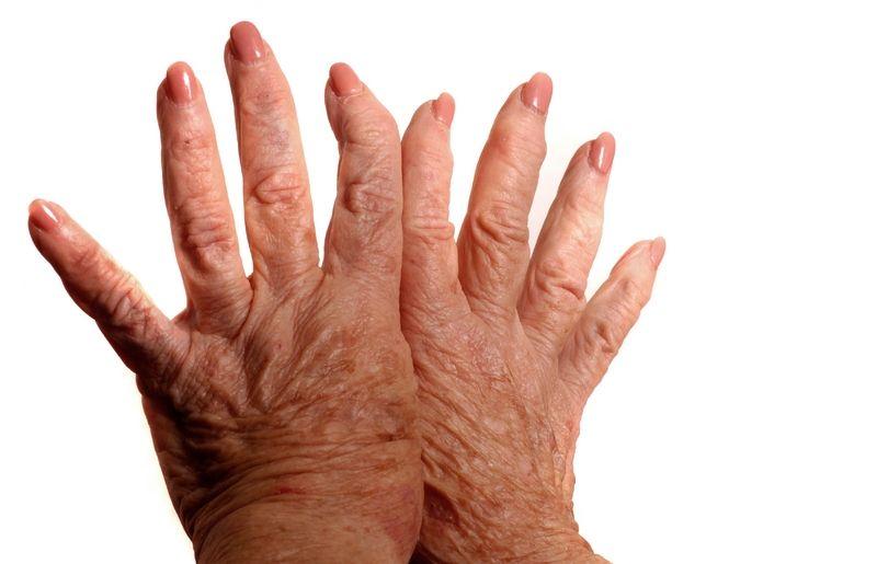 ujjak rheumatoid arthritis