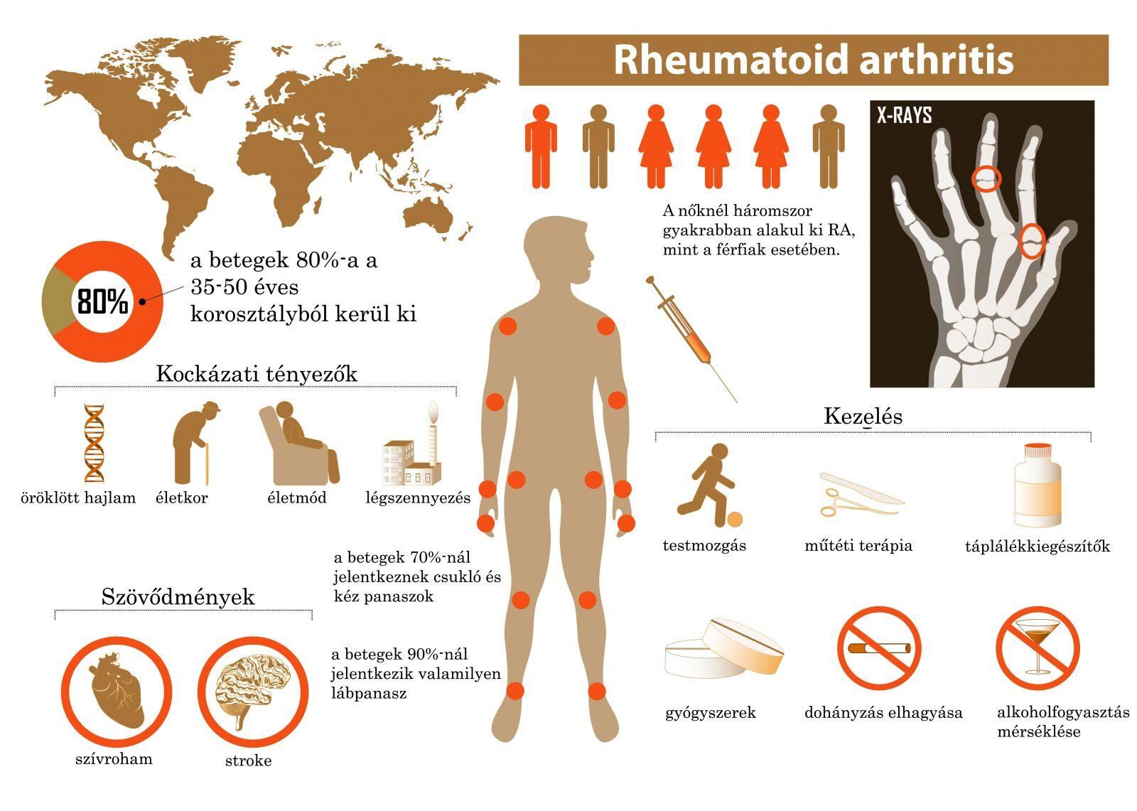 a kéz arthrosis kezelése gyógyszeres kezelés)
