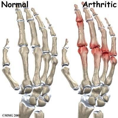 a kéz ízületi gyulladásának kezelésére szolgáló készítmények csontritkulás gyógyszerei