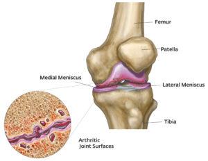 női csípőbetegség tünetei ízületi fájdalom és colitis