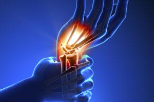 metacarpophalangealis deformáció artrózis