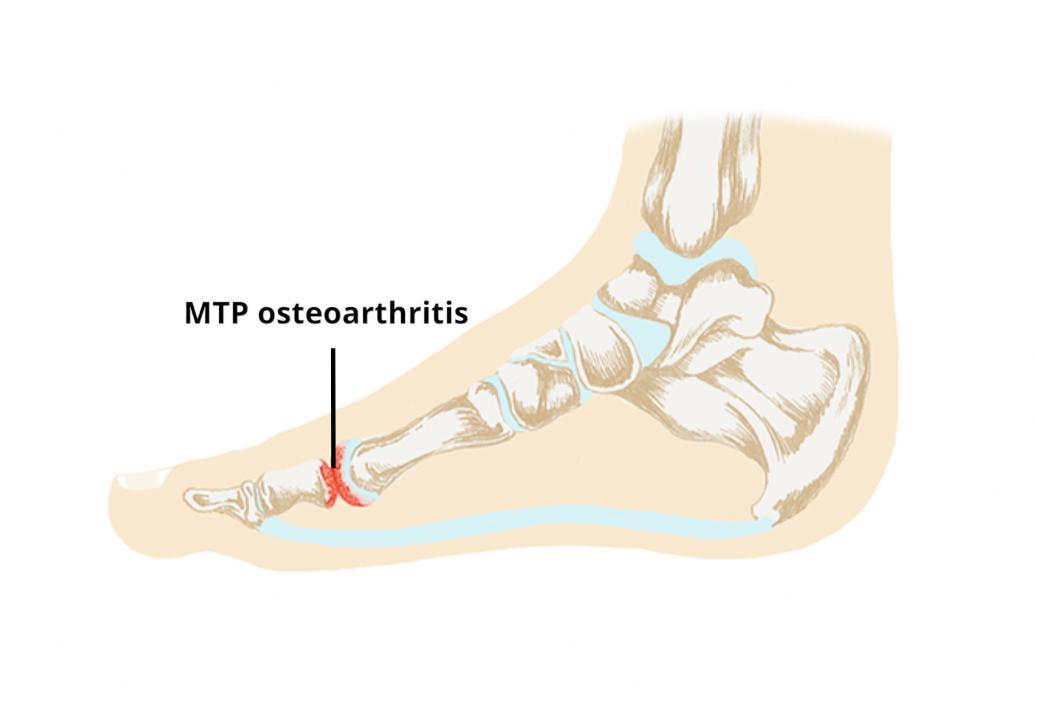 first mtp osteoarthritis icd 10)