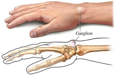 fáj a harmadik ujj ízülete)