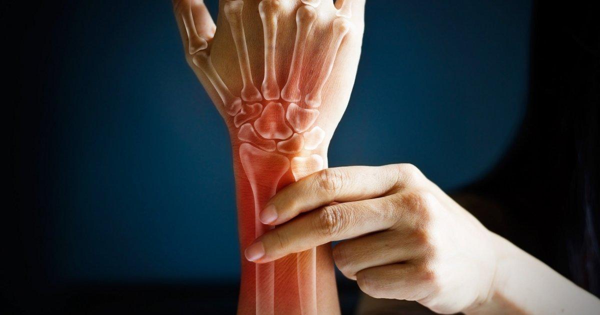 fáj a jobb kéz és a csukló ízületei)
