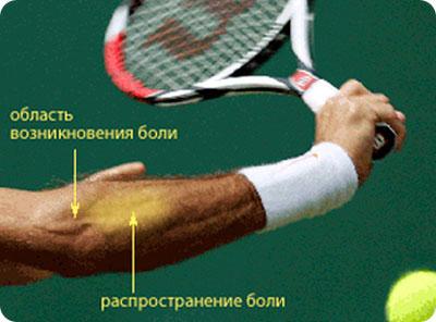 fájdalom a bal könyökízületben mi ez a térdízület artrózisa 1 fok