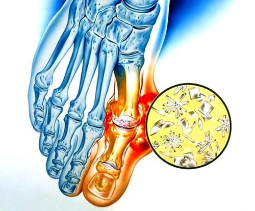 fájdalom a csípőízület lábában