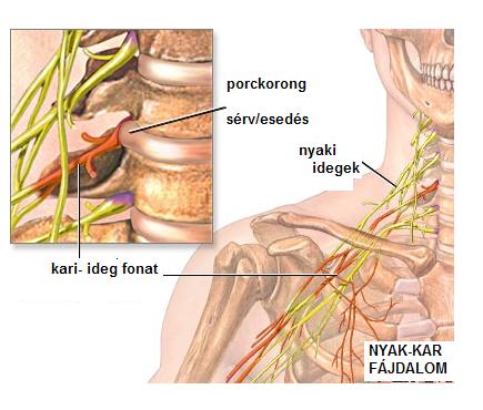 fájdalom a gerinc nyakízületeiben