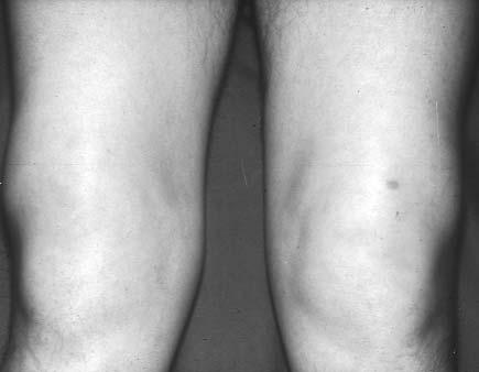 fájdalomcsillapítók térdízület-tabletták artrózisához