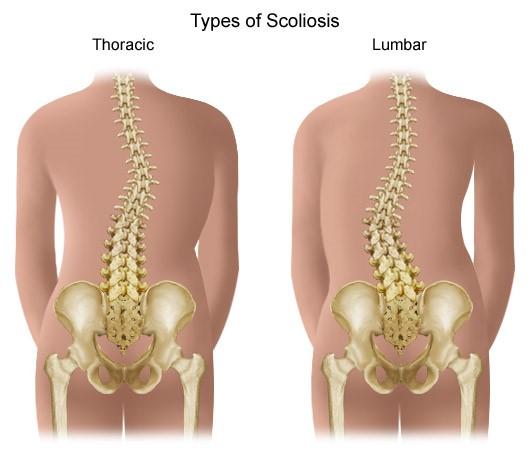 gerincvelő artrózisa hogyan kell kezelni)
