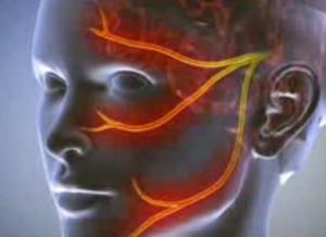 Szinonímák: Gonarthrosis, Térdartrózis, Térdízületi artrózis