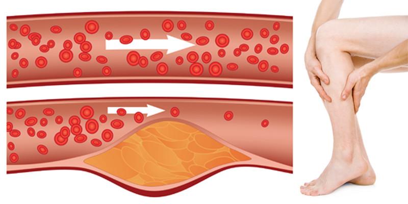 gyógyszer az alsó végtagi ízületi gyulladás kezelésére