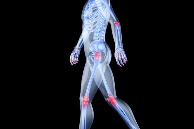 gyógyszerek a csípőízület artrózisához 2 fokkal)