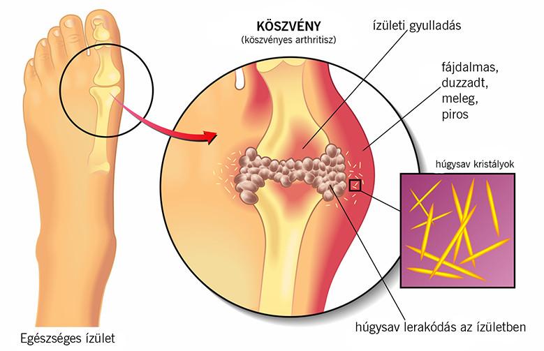 gyógyítja a nagy lábujj izületi gyulladását)