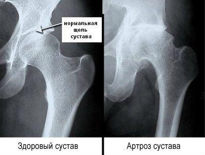 Hogyan gyógyítható a harmadik fokozatú csuklós deformáló coxartrózis? - Ficam