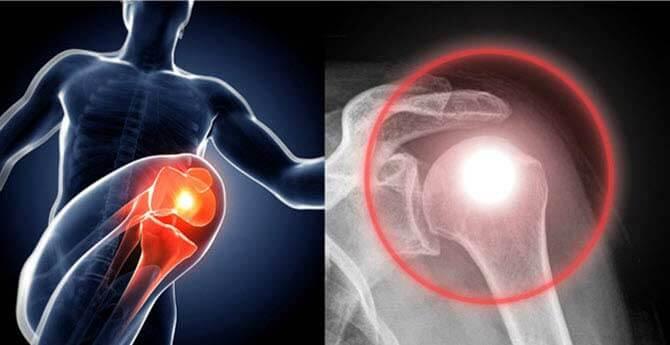 hogyan kezeljük a fájdalmat az artrózissal állandó lábfáradtság és ízületi fájdalom