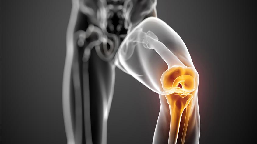 hogyan kezeljük a sport ízületi sérüléseket